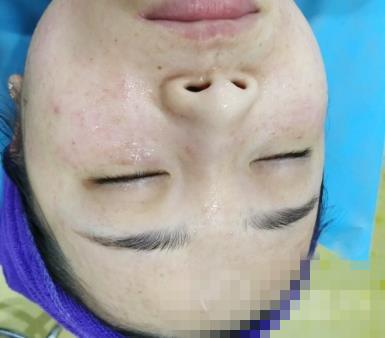 郑大附二整形激光祛斑案例 术后皮肤干净细腻紧绷