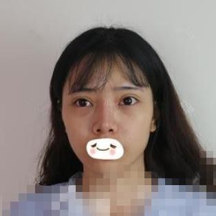 广州海峡整形肋软骨隆鼻案例 鼻头小巧玲珑显得很有气质呢