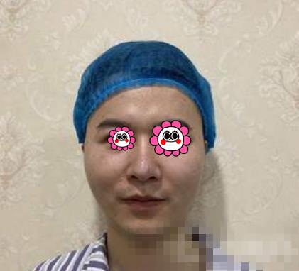郑大二附院整形肉毒素注射案例 脸型瘦下来显得五官超立体超酷