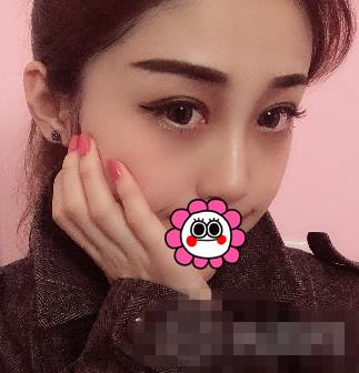 上海时光整形隆鼻案例 高挑立体的鼻子让我颜值逆袭