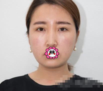 徐州华美整形肋软骨隆鼻案例 术后面部十分有立体感整体协调