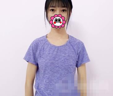 广州南珠整形假体隆胸案例 性感的身材穿裙子超级苗条