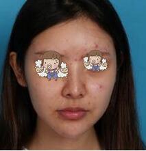 成都娇点整形硅胶假体+耳软骨垫鼻尖案例 朋友见面了使劲夸我