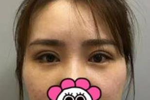 """北京丽都整形双眼皮修复案例 完美放大你的""""电眼"""""""