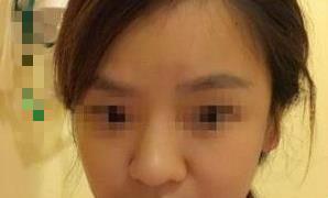 北京美莱整形隆鼻案例 我的鼻子就恢复的更加真实自然
