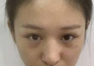 合肥华美整形隆鼻案例 让你拥有精致美鼻