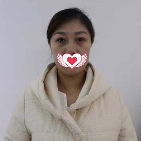 郑州集美整形激光去眼袋案例 术后恢复快,舒适自然