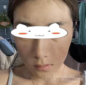 哈尔滨索菲整形祛斑案例 脸看上去满满的胶原蛋白