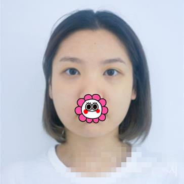 北京东方和谐整形面部吸脂案例 面部立体感十足小脸迷人
