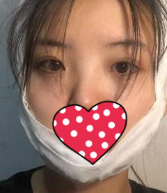 杭州维多利亚整形下颌角整形案例 从此告别大饼脸