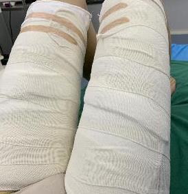 长沙美莱整形大腿吸脂案例 秀出笔直的美腿