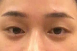重庆美仑美奂整形双眼皮案例 眼睛变得又大又有神