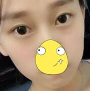 西安西美整形眼部综合案例 2个月的表现还是很自然的
