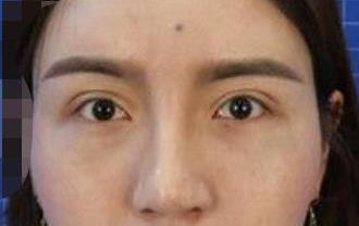 贵阳利美康整形去眼袋案例 眼睛看上去更大更亮更年轻了