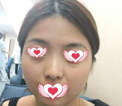 广州曙光整形隆鼻案例 术后自信心爆棚,外貌的变化得到更多机会