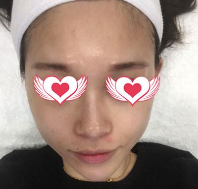 杭州美莱整形热玛吉案例 皮肤依然保持紧致的状态,美美的