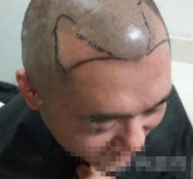 广州美莱整形发际线种植案例 终于摆脱秃头的烦恼迎接新头发啦