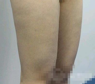 成都艺星整形大腿吸脂案例 大腿细了心情也没美美哒