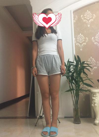 杭州时光整形大腿吸脂案例 变得漂亮了,人心情也变好了