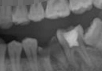 上海伊莱美整形牙齿种植案例 让我的牙齿又白又亮