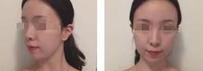 杭州美莱整形埋线案例 从此有一张无可挑剔的小V脸