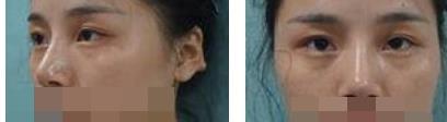 杭州美萊整形全切雙眼皮案例 看著眼睛又大又圓越來越有自信心了