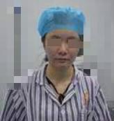 合肥華美整形埋線提升案例 好看的面部輪廓成為側顏殺手