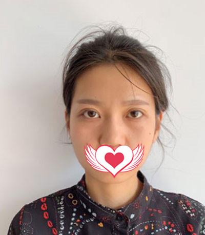 杭州瑞丽整形面部吸脂案例 术后未出现凹凸不平情况,皮肤紧致