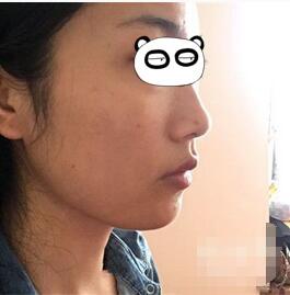长沙协雅整形肉毒素瘦脸案例 分享两个多月咬肌肥大变瘦的体验