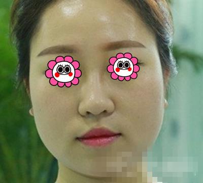 上海首尔丽格整形磨骨案例 大圆脸变V字脸穿都好好看