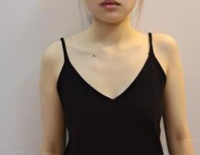 """上海伊莱美整形隆胸案例 重新拥有波涛汹涌的""""凶器"""""""