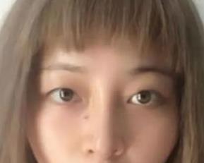 安徽韩美整形双眼皮修复案例 做个大眼女神