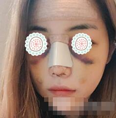 郑州菲林整形假体隆鼻案例 一个月了,真是妥妥的一枚美女