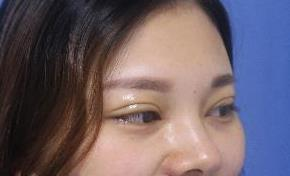 安徽韩美整形割双眼皮案例 小眼睛的逆袭