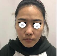 长沙美莱整形肋软骨隆鼻案例 来看看我的3个月后的效果颜值变化