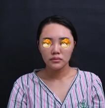 重庆军美整形鼻综合案例 这种小巧的鼻子挺可爱精致的吧