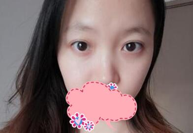 南宁隆鼻修复案例 靠谱的整形医生是非常重要