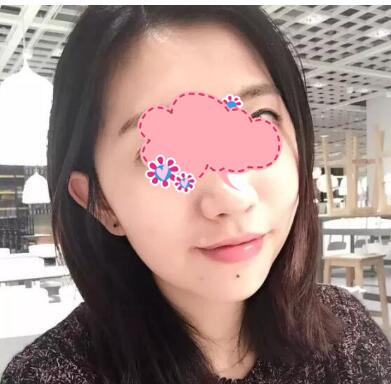广州美莱整形地包天案例 术后2个月整个人的面部都很好看很精致