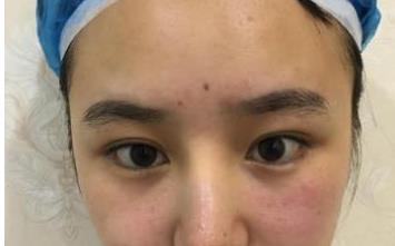 合肥华美整形双眼皮案例 我成功的变成了一个漂亮的大眼妹