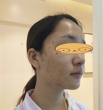 南京韩辰整形埋线提升案例 术后摸摸脸两侧觉得滑滑的非常自然