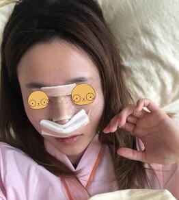 深圳非凡整形膨体隆鼻案例 脸不仅变立体了,还变小了
