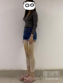 重庆当代整形水动力吸脂瘦大腿案例 本来是大长腿,再瘦就完美了
