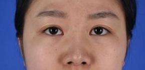 杭州美莱整形隆鼻案例 为您缔造高挺美鼻