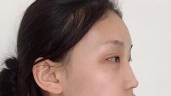 福州海峡整形隆鼻案例 让您拥有精致美鼻