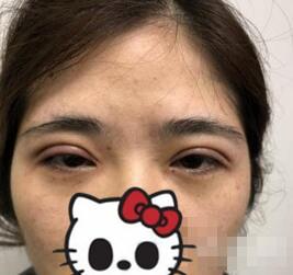海南华美整形双眼皮案例 做完之后整个容貌状态都上升很多