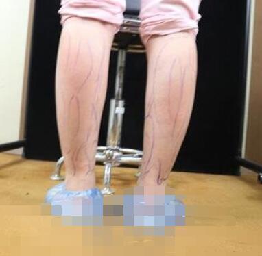 上海百达丽整形瘦小腿案例 术后性感美腿可以驾驭超短裙 短裤了