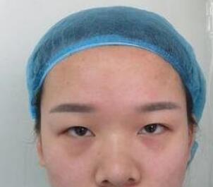广州美莱整形李高峰医生双眼皮案例 单眼皮变成美丽双眼皮过程