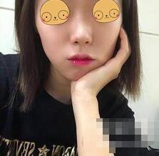 武汉中爱铭医整形鼻综合案例 我的颜值确实是因为鼻子才好看的