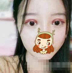 九江唯美整形全切双眼皮案例 术后1个月,疤痕不明显了