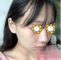 潍坊华美整形任传琦医生自体脂肪全脸填充案例 是青春的气质呀